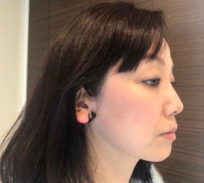 に かける 器 耳 美顔